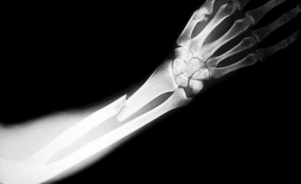 do i need a broken bone to have a personal injury case