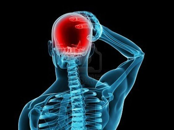 headaches and head injuries